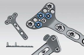 Системы для остеосинтеза костей лучезапястного сустава и костей предплечья KLS Martin
